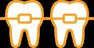 Darstellung zweier Zähne mit Gratis-Zahnspange